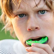 5 Facts about Your Sports Mouth Guard Dentist Troy, MI